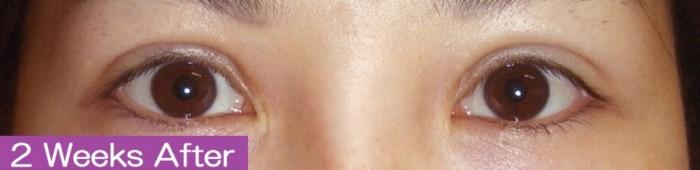 裏眼瞼下垂1-8