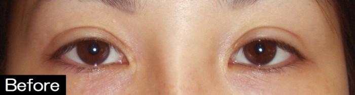 裏眼瞼下垂1-7
